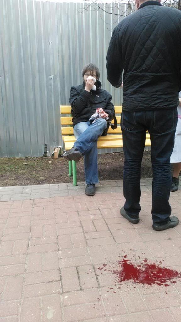 Станислав Поздняков после избиения